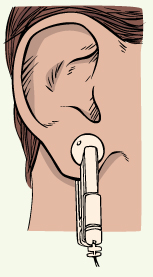 Bio Tuner Earclips Placement